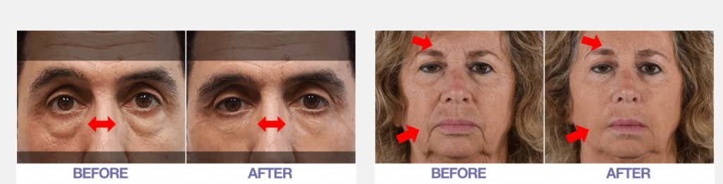 Plexaderm Rapid Reduction Cream results
